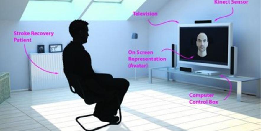 Kinect – facial paralysis